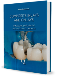 Composite Inlays and Onlays