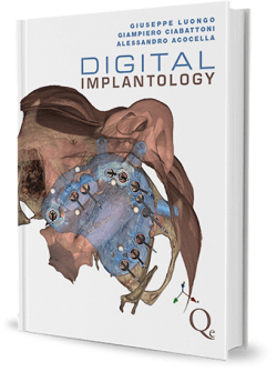Digital implantology