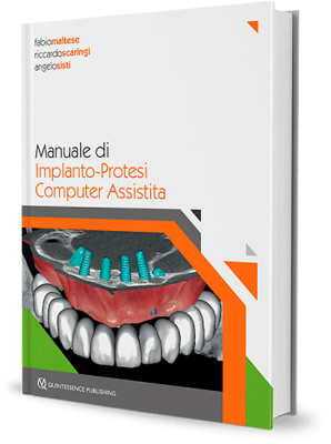 Manuale di Implanto-Protesi Computer Assistita