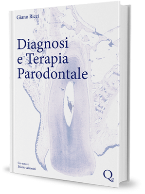 Diagnosi e terapia parodontale